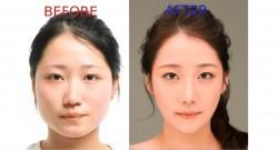 პლასტიკური ქირურგია კორეაში, ოპერაციამდე და ოპერაციის მერე – ეს სასწაულია!
