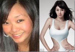 კორეული პლასტიკური ქირურგიის სასწაული – კორეელი პოპ ვარსკვლავები ოპერაციამდე და ოპერაციის მერე