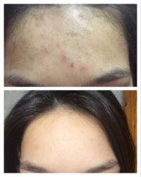 Adori Anti Acne, რას კურნავს და როგორ გავუმკლავდეთ გვერდით მოვლენებს